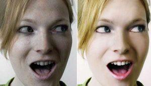 How-to-banish-blackheads-forever