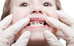 Os 6 Remédios Caseiros para a Cárie Dentária