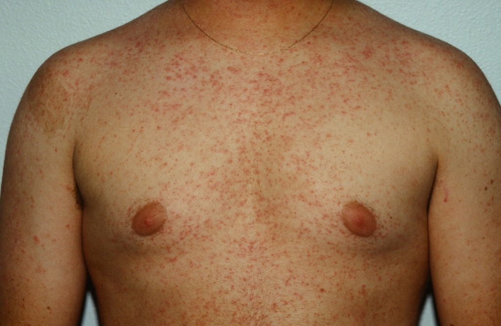 Os 10 Tratamentos Para Ceratose Pilar