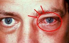 Conjuntivite – Oque é Sintomas e Tratamento, Prevenção