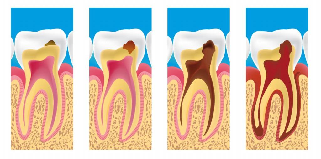 tipos de Cárie Dentária