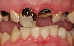 Cárie Dentária: O que é, Quais os Sintomas e Tratamentos