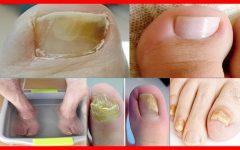 Essa Receita Elimina Rapidamente os Fungos dos Pés e das Mãos!