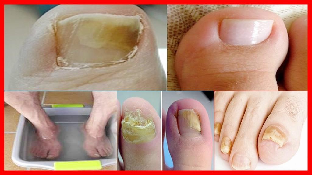 Eliminar os Fungos dos Pés e das Mãos