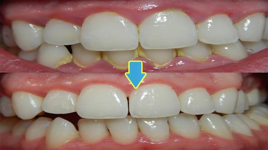 Receita Caseira Para remover a Placa Bacteriana e o Tártaro dos Dentes!