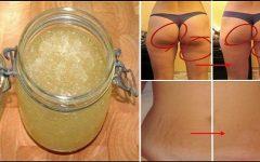 Gengibre e Limão, uma Combinação Perfeita Para Perder Peso e Eliminar a Celulite!