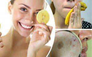 Remédios Caseiros Para Remover Manchas na Pele