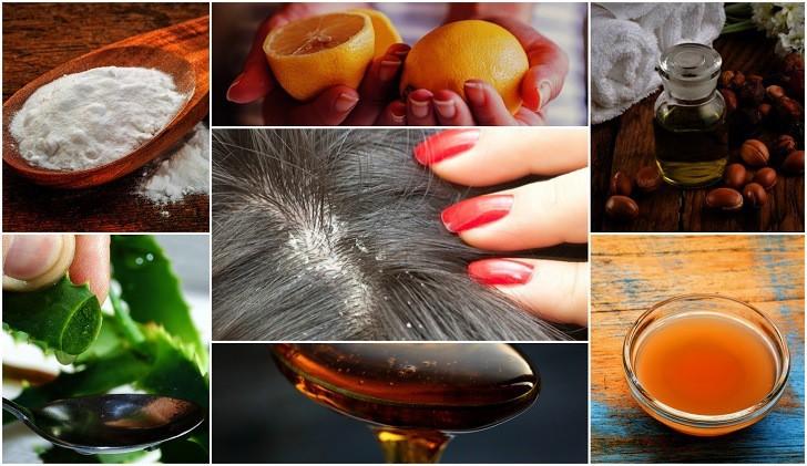remedios caseiros para caspa