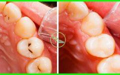 7 Receitas Para Eliminar as Cáries Dentária Sem Ir Ao Dentista!