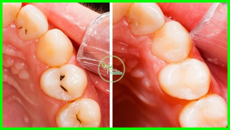 receita caseira para remover a carie dentaria