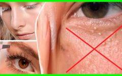 """Veja Como Eliminar o """"Milium"""", as Bolas Brancas ao Redor dos Olhos!"""