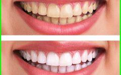 Incrível Truque Caseiro Para Clarear os Dentes em 2 Minutos!