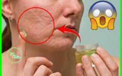 Como Remover Cicatrizes da Acne Naturalmente em 5 Dias!