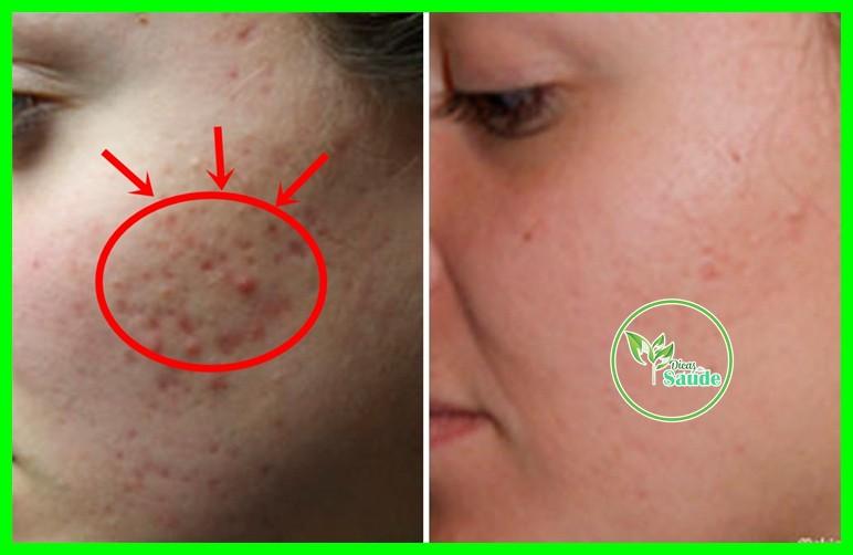 receita caseira que remove a cicatriz de acne