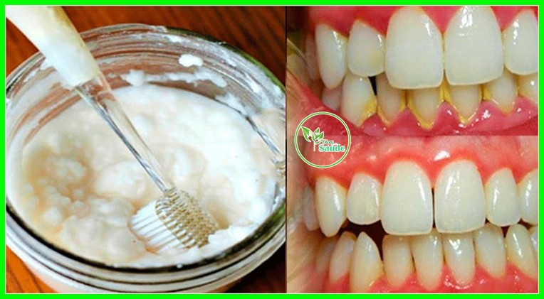 Receita caseira para remover Tártaro e a Placas nos dente
