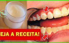 Como Eliminar o Tártaro nos Dentes Naturalmente, Sem Ter que Ir Ao Dentista em Apenas 5 Minutos.. !!