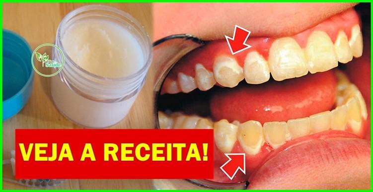 receita caseira para acabar com os tartaros dos dentes