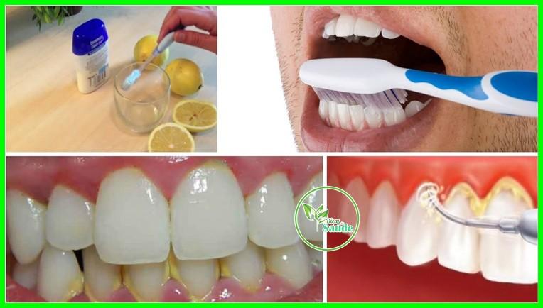 remover Tártaro e a Placas nos dente